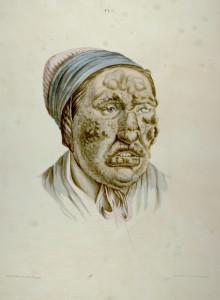 Kvinnelig leprapasient, Lostings plansje IV fra 1846. Arkivet etter St. Jørgens Hospital, Bergen Byarkiv.